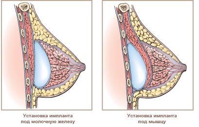 Пластических операций груди