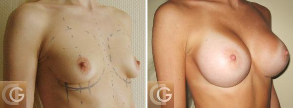 Операция по увеличению груди швы