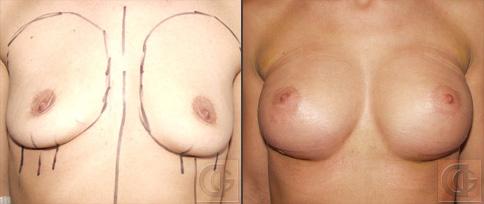 Импланты груди анатомической
